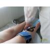 Лечение артрозов и артритов  в Саратове